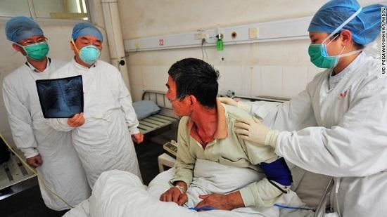 Phát hiện trường hợp đầu tiên virus H7N9 lây từ người sang người