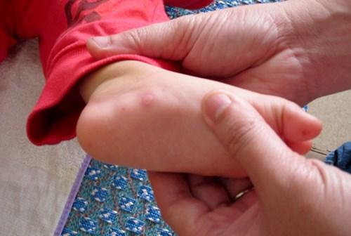 Hỏi đáp chi tiết về bệnh tay chân miệng